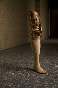 Forgotten leg