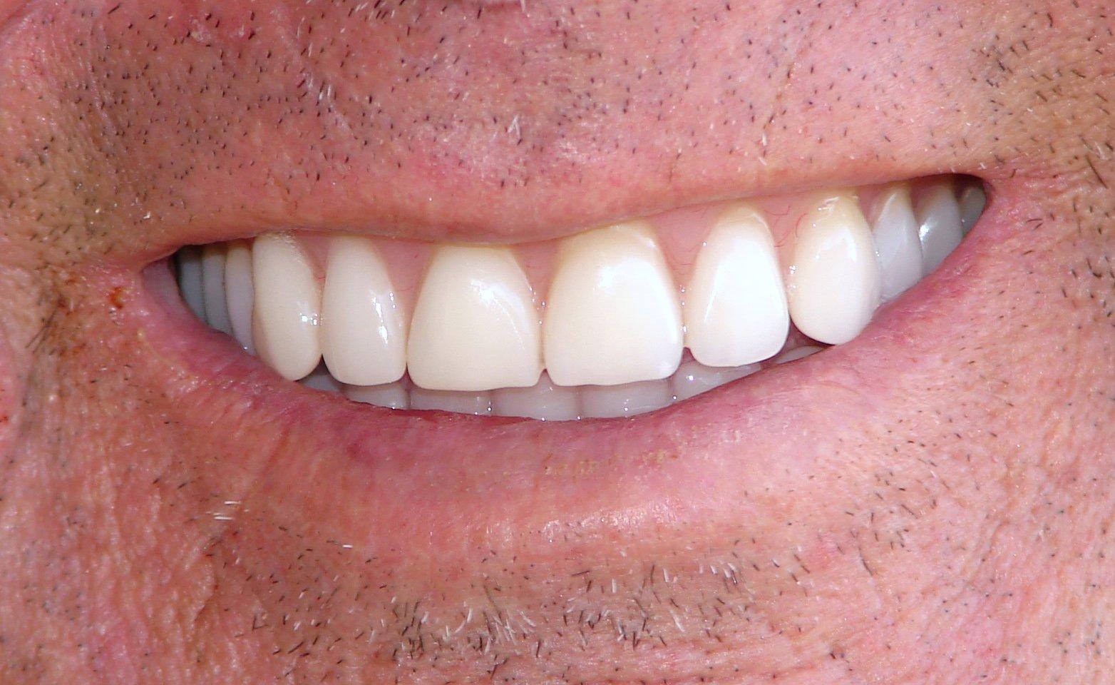 Brand New Teeth